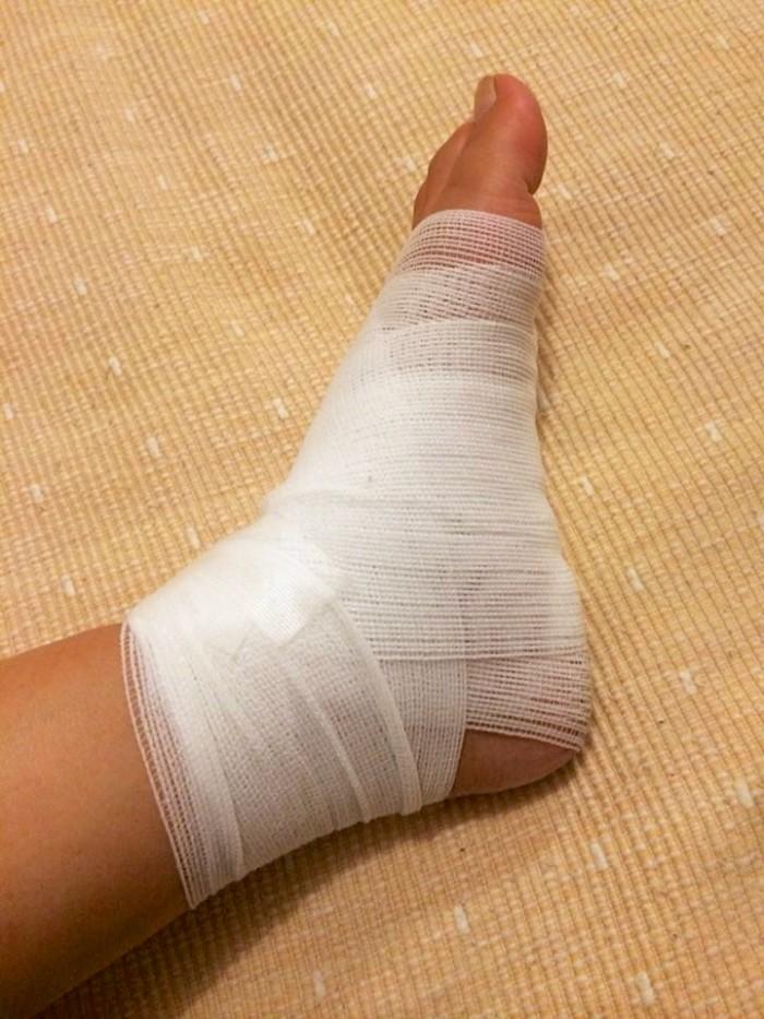 足グルグル巻き。毎日、消毒しては包帯を巻いて…の繰り返し。対応してくれたネネちゃんと先生には本当にお世話になりました